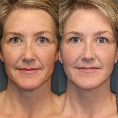 Laser Resurfacing Gallery - Patient 8560434 - Image 1