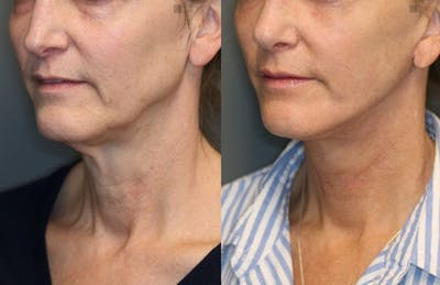 Laser Resurfacing Gallery - Patient 8560439 - Image 1