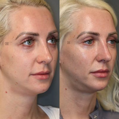 Dermal Fillers Gallery - Patient 8560443 - Image 1