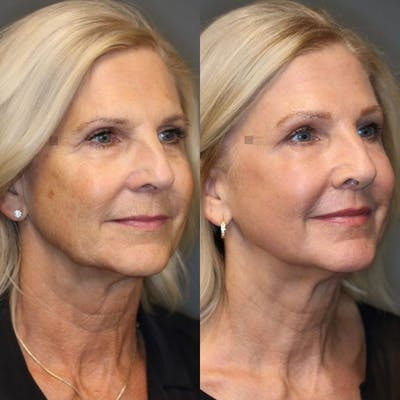 Laser Resurfacing Gallery - Patient 8560464 - Image 1