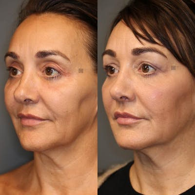 Dermal Fillers Gallery - Patient 8560526 - Image 1