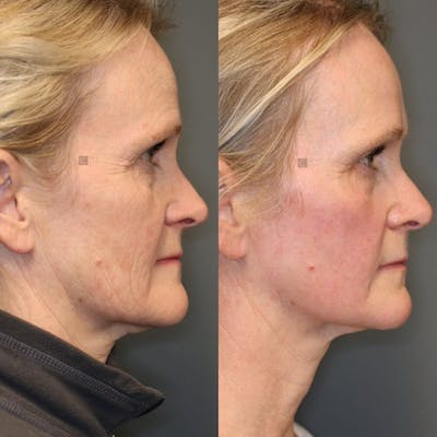 Laser Resurfacing Gallery - Patient 8560556 - Image 1