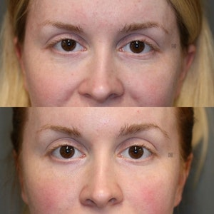 Before and After Facial Fat Transfer