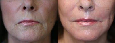 Vertical Lip Lines Gallery - Patient 9511812 - Image 1