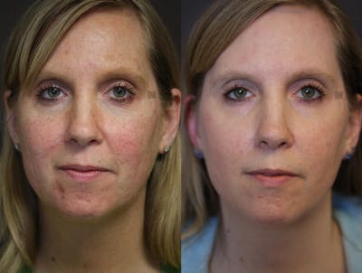 Light Based Acne Treatment Gallery - Patient 9511819 - Image 1
