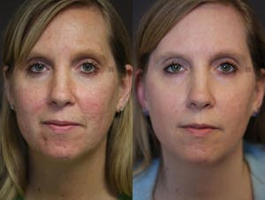 Before and after light-based acne treatment