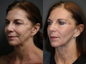 Before and After Virtuoso Lift - Neck & Jawline Tightening