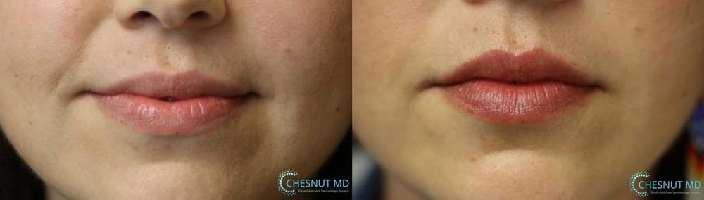 Micro-Structural Lip Augmentation Gallery - Patient 9511844 - Image 1