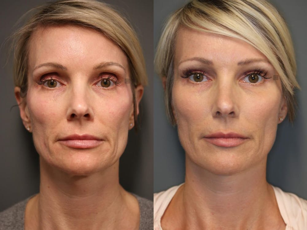 Midst Lift - Non-Surgical Facelift Gallery - Patient 9511852 - Image 1
