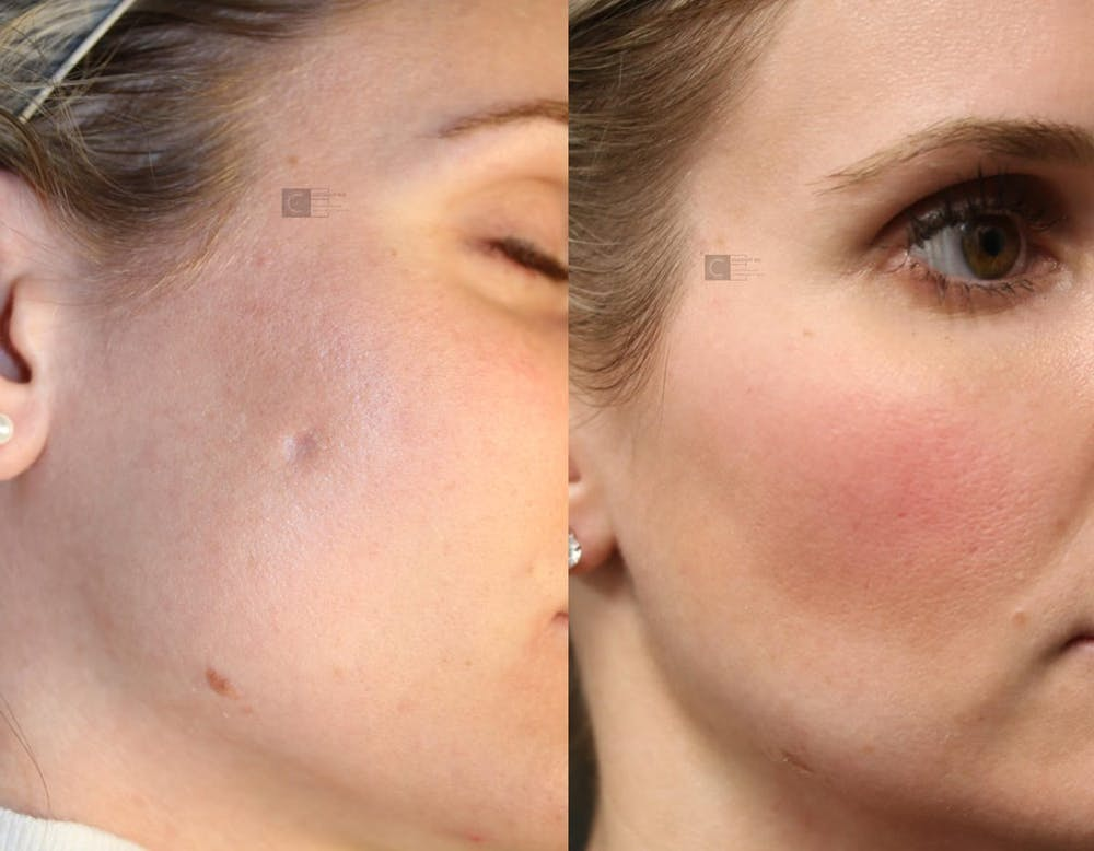 Photodynamic Acne Scar Remodeling Gallery - Patient 9511882 - Image 1