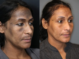 Before and after platelet rich plasma therapy in Spokane