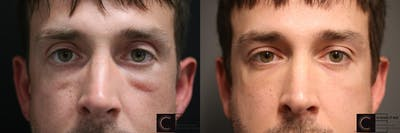 EnigmaLift - Eye Bag Removal Gallery - Patient 9511884 - Image 1