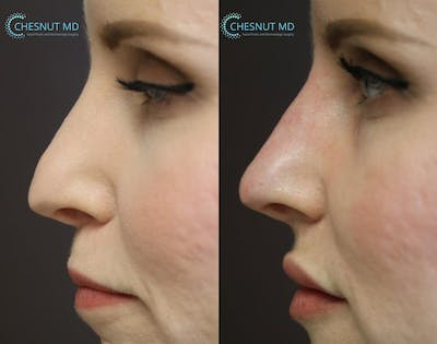 Non-Surgical Rhinoplasty Gallery - Patient 9511898 - Image 1