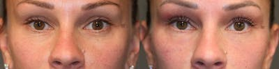 Laser Resurfacing Gallery - Patient 8560441 - Image 1