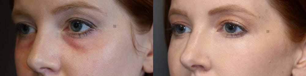 Tear Trough Correction Gallery - Patient 24089088 - Image 1