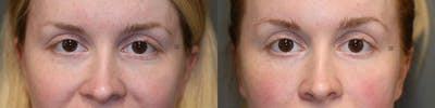 Laser Resurfacing Gallery - Patient 8560566 - Image 1