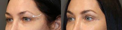 EnigmaLift - Upper Eyelids Gallery - Patient 8560569 - Image 1