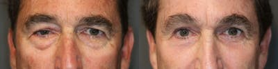 Brow Lift Gallery - Patient 8560362 - Image 1