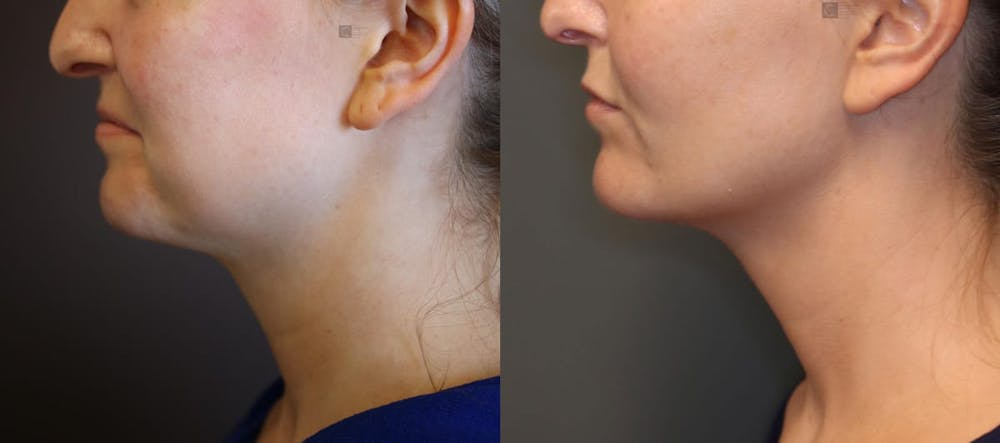 Structural Jawline Contouring Gallery - Patient 9494218 - Image 1