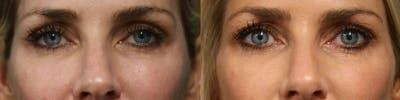 Dermal Fillers Gallery - Patient 25458565 - Image 1