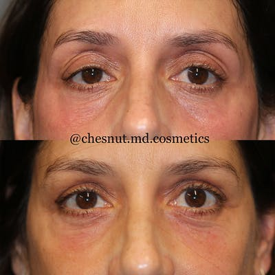 Dermal Fillers Gallery - Patient 25458607 - Image 1