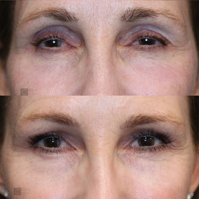 Dermal Fillers Gallery - Patient 25459022 - Image 1