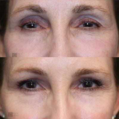 EnigmaLift - Upper Eyelids Gallery - Patient 25459031 - Image 1