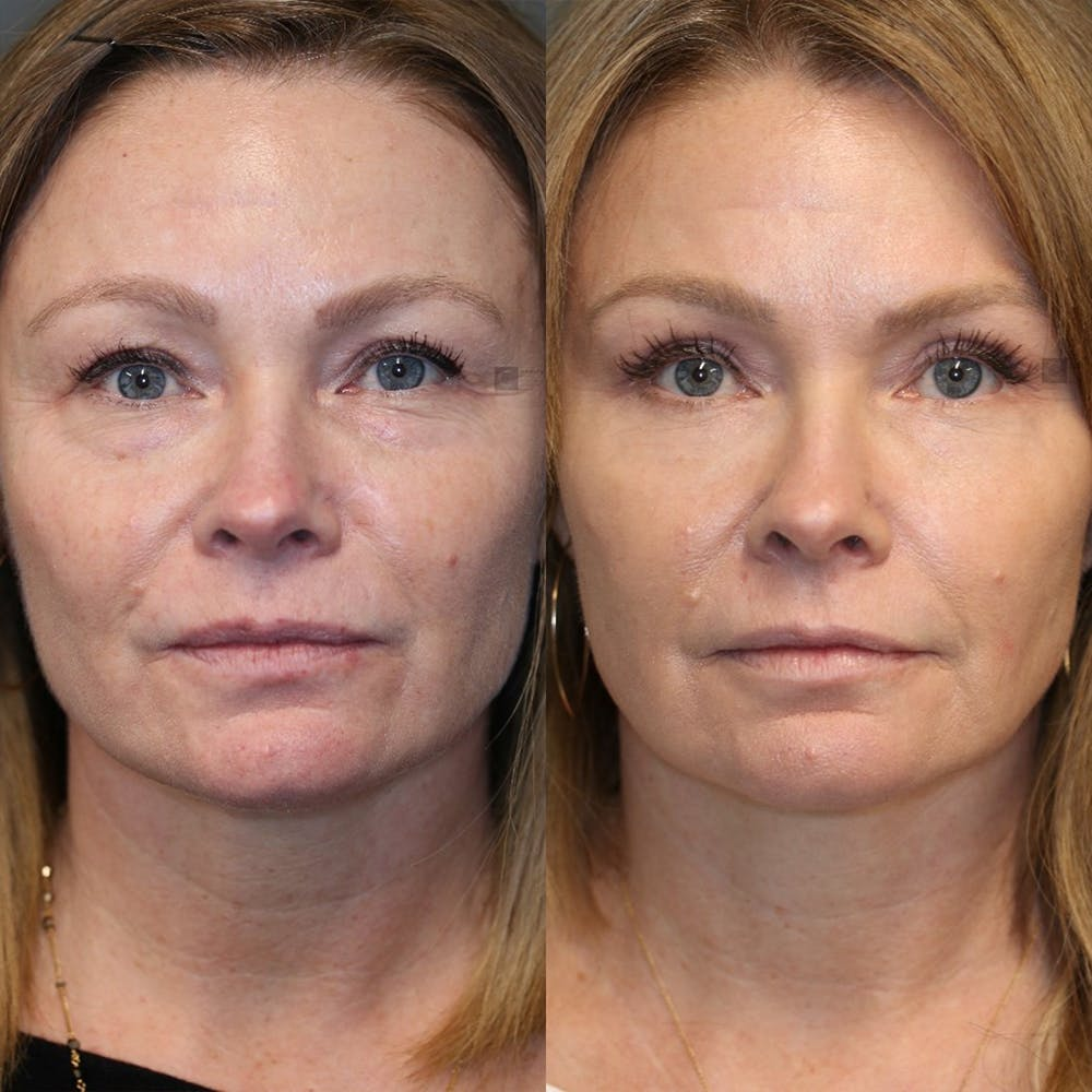 EnigmaLift - Eye Bag Removal Gallery - Patient 25459146 - Image 1
