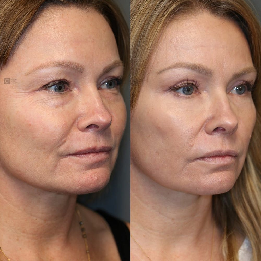 EnigmaLift - Eye Bag Removal Gallery - Patient 25459146 - Image 2