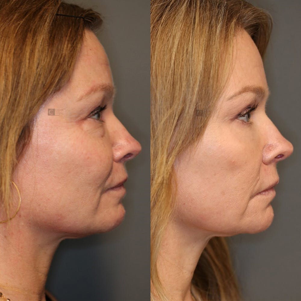 EnigmaLift - Eye Bag Removal Gallery - Patient 25459146 - Image 3