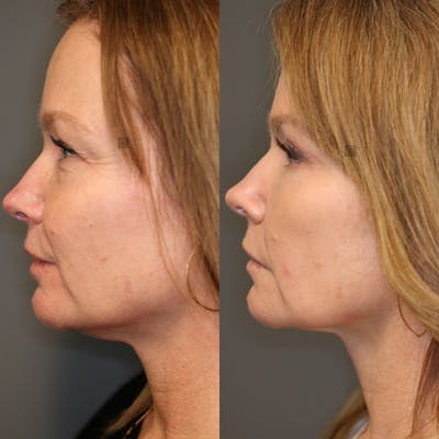 EnigmaLift - Eye Bag Removal Gallery - Patient 25459146 - Image 4