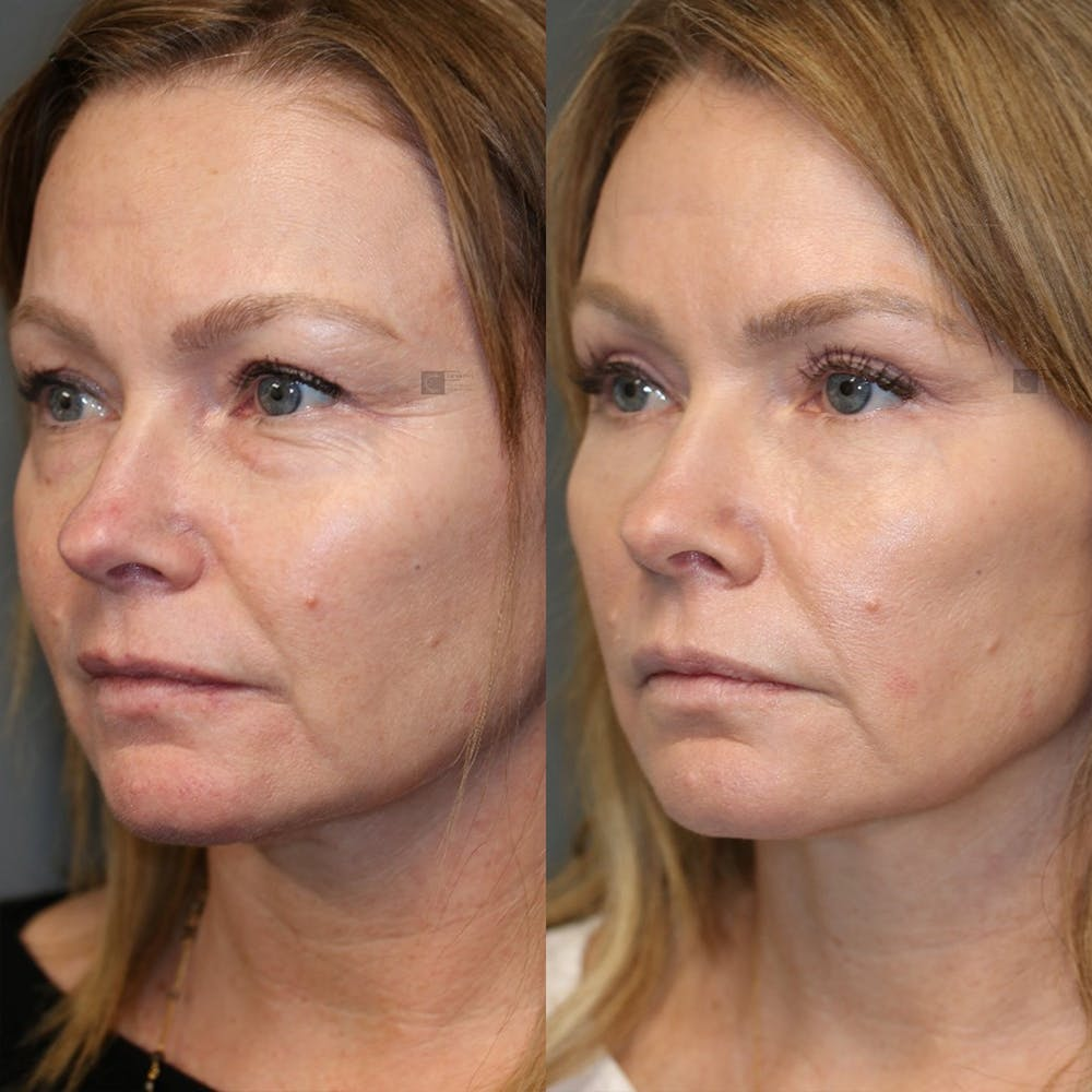 EnigmaLift - Eye Bag Removal Gallery - Patient 25459146 - Image 5