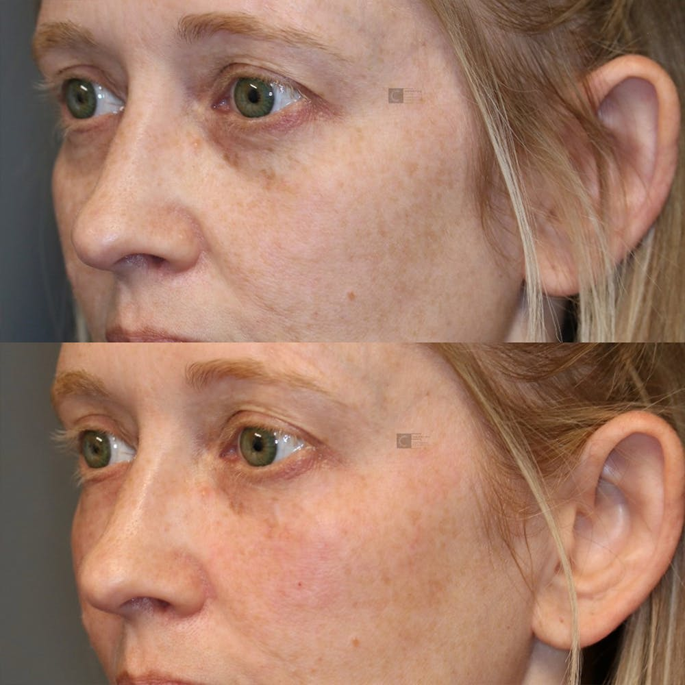 Facial Fat Transfer Gallery - Patient 25459171 - Image 1