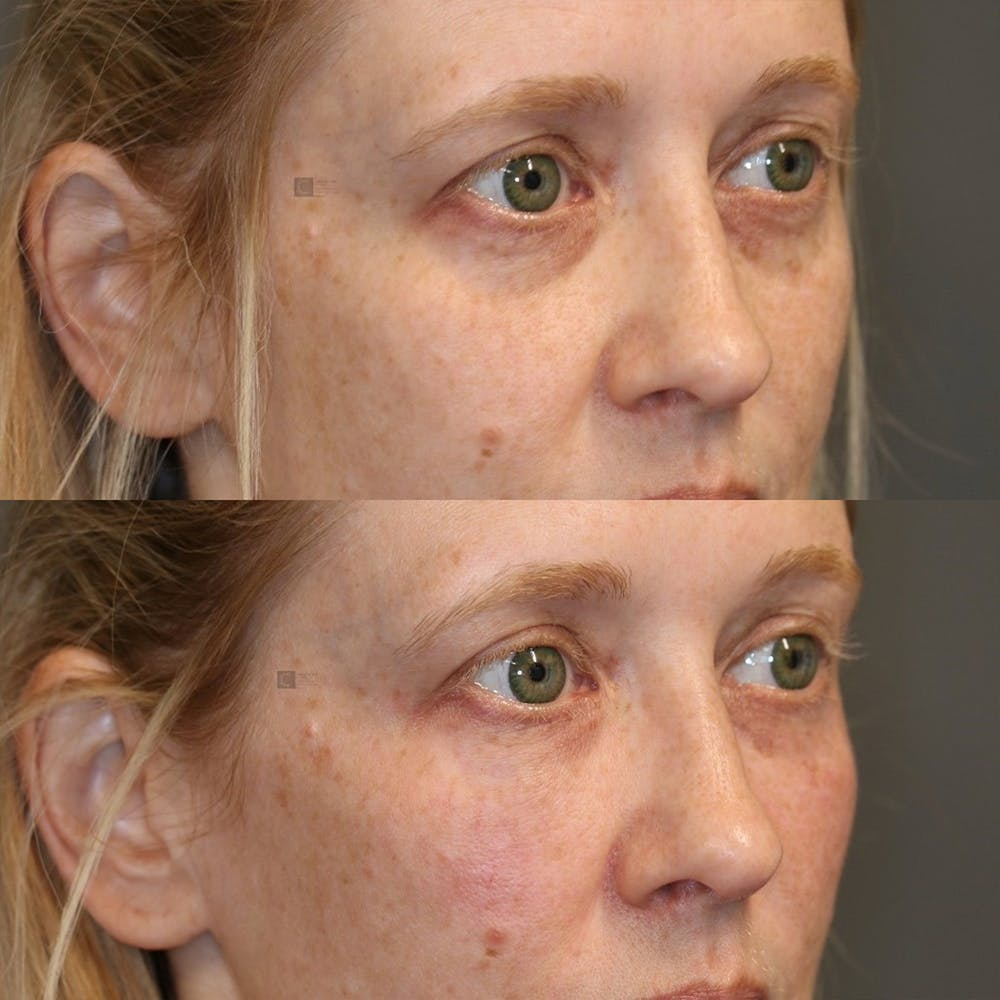 Facial Fat Transfer Gallery - Patient 25459171 - Image 2