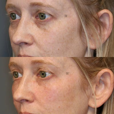EnigmaLift - Eye Bag Removal Gallery - Patient 25459204 - Image 1