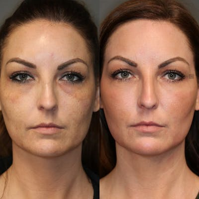 Dermal Fillers Gallery - Patient 25459246 - Image 1