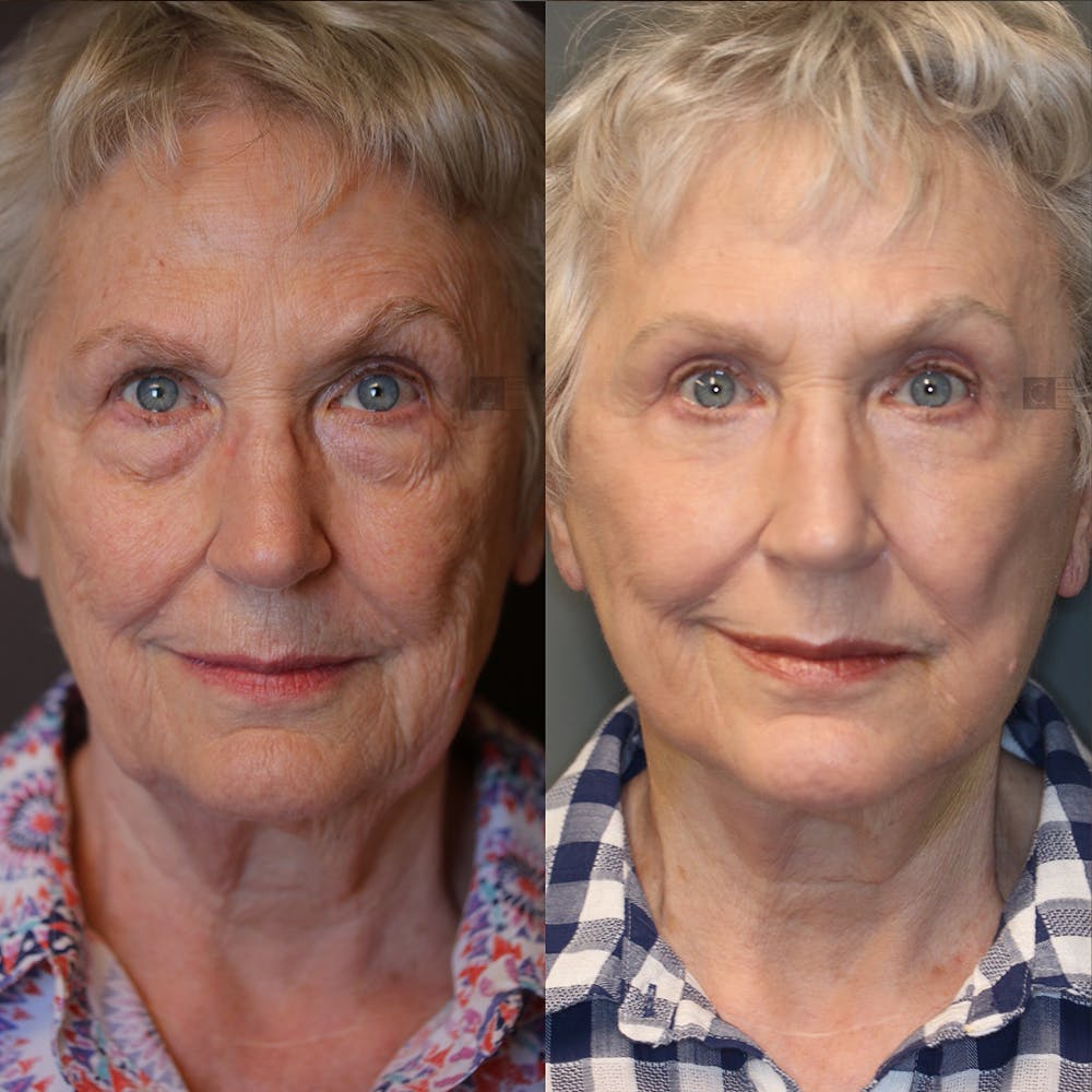 EnigmaLift - Eye Bag Removal Gallery - Patient 25459473 - Image 1
