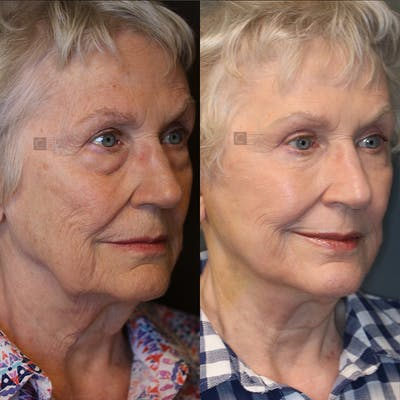 EnigmaLift - Eye Bag Removal Gallery - Patient 25459473 - Image 2