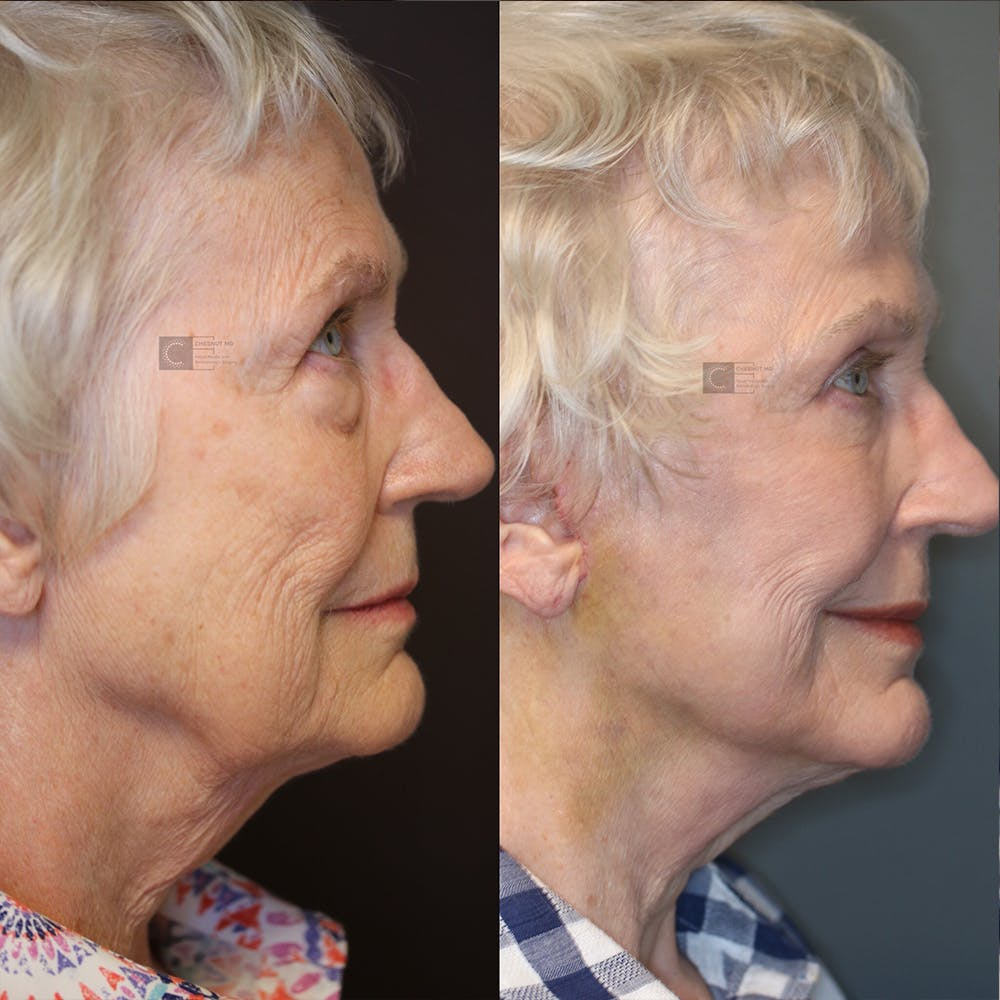 EnigmaLift - Eye Bag Removal Gallery - Patient 25459473 - Image 3