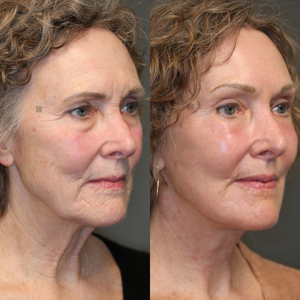 Laser Resurfacing Gallery - Patient 25459599 - Image 5