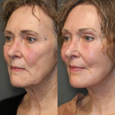 EnigmaLift - Eye Bag Removal Gallery - Patient 25459607 - Image 2