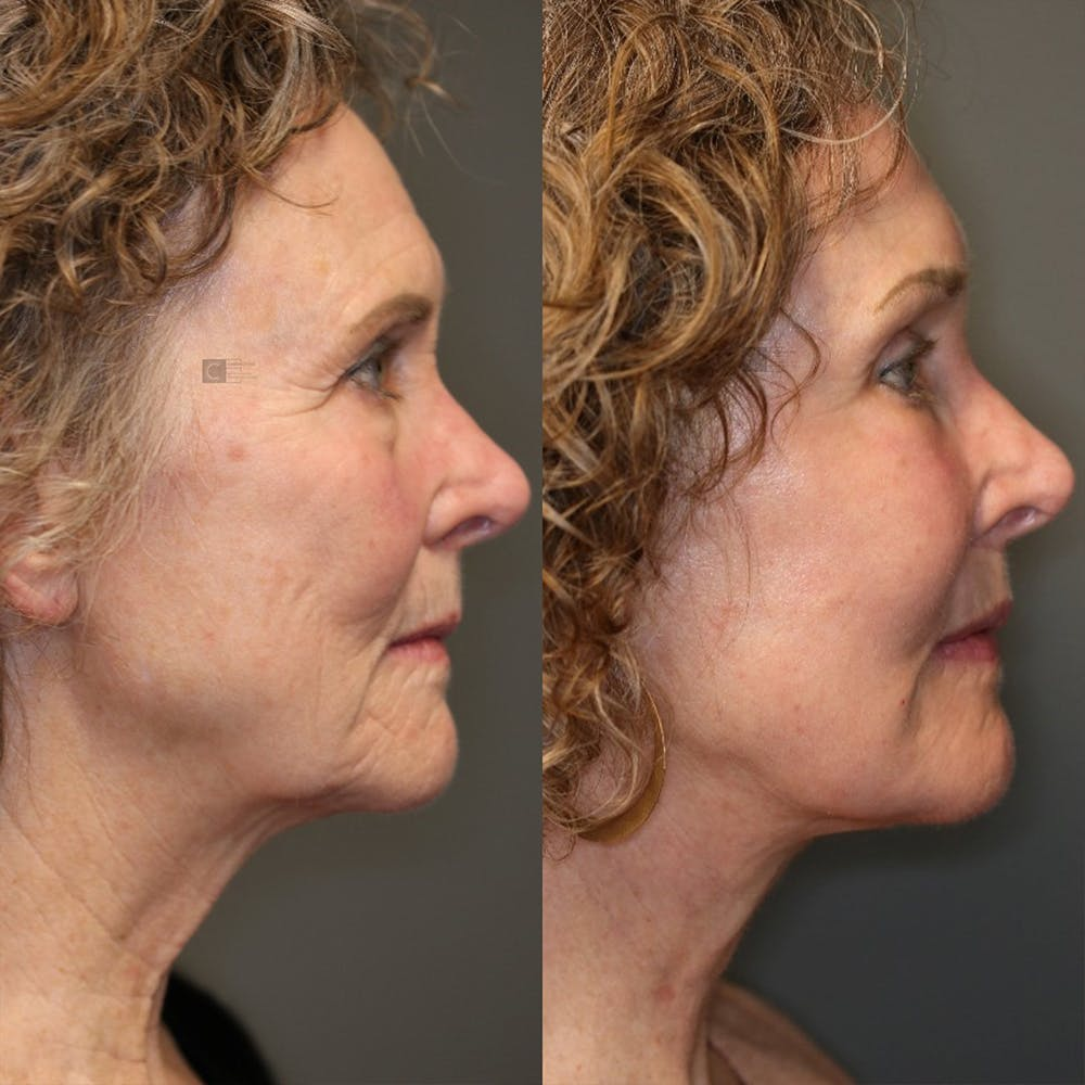 EnigmaLift - Eye Bag Removal Gallery - Patient 25459607 - Image 4
