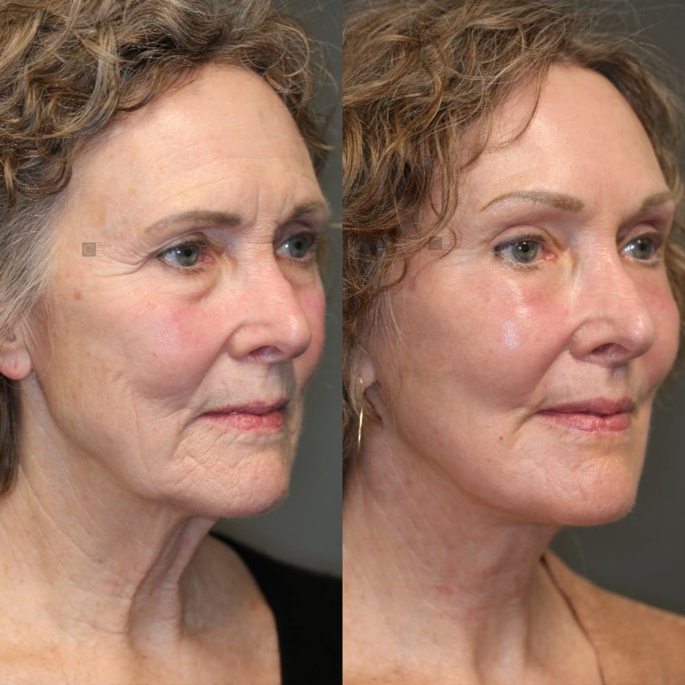 EnigmaLift - Eye Bag Removal Gallery - Patient 25459607 - Image 5