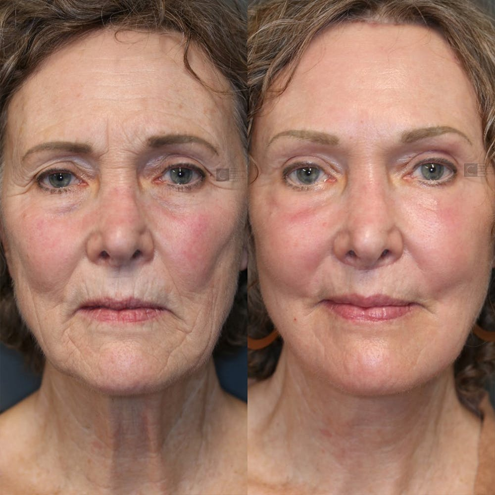 Brow Lift Gallery - Patient 25459632 - Image 1
