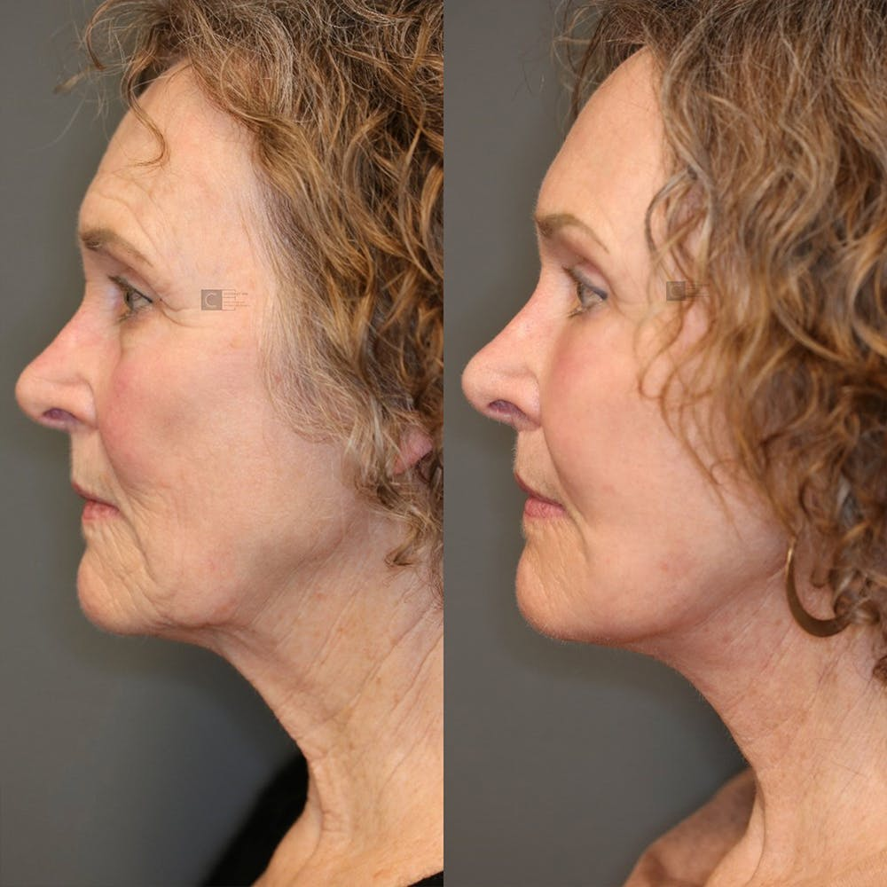 Brow Lift Gallery - Patient 25459632 - Image 3