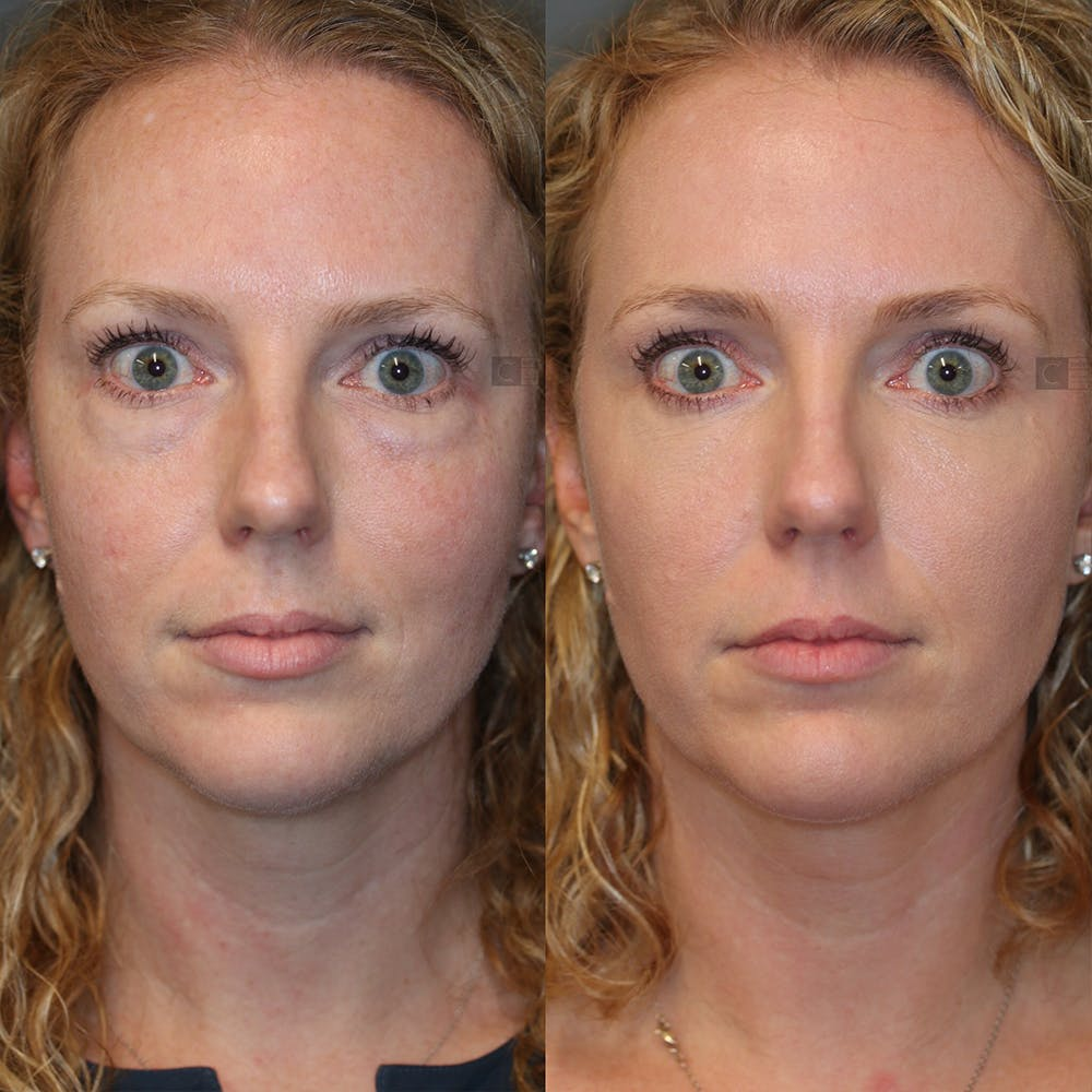 Laser Resurfacing Gallery - Patient 32743356 - Image 1