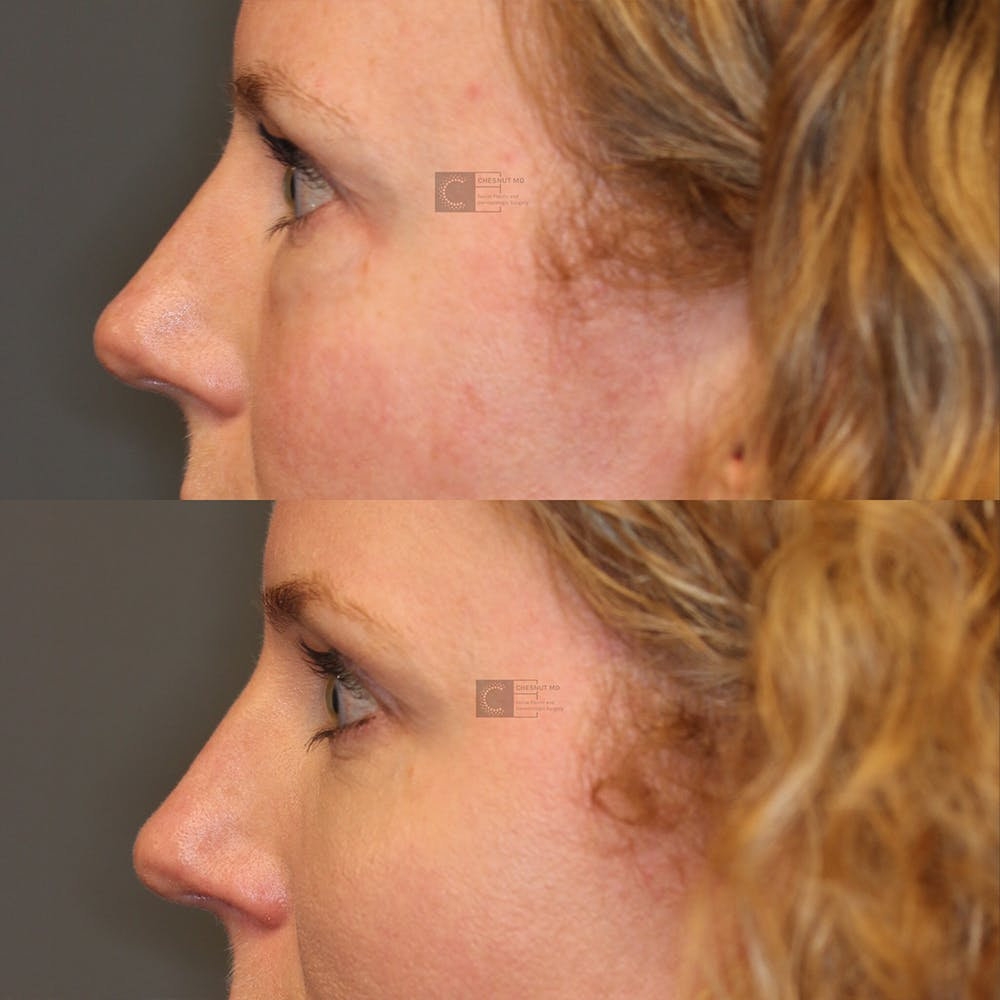 Laser Resurfacing Gallery - Patient 32743356 - Image 4