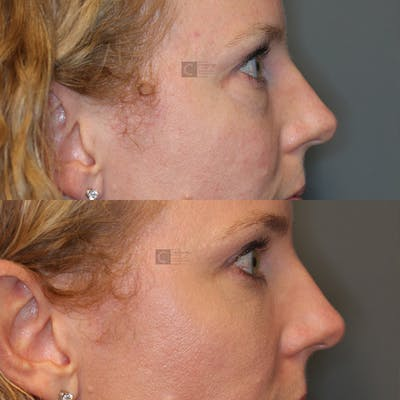 Laser Resurfacing Gallery - Patient 32743356 - Image 6