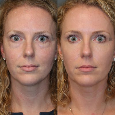 EnigmaLift - Eye Bag Removal Gallery - Patient 32743367 - Image 1