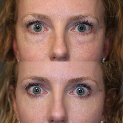 EnigmaLift - Eye Bag Removal Gallery - Patient 32743367 - Image 2
